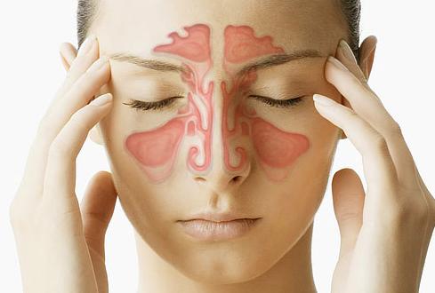 Perbedaan Sinus dengan Sinusitis